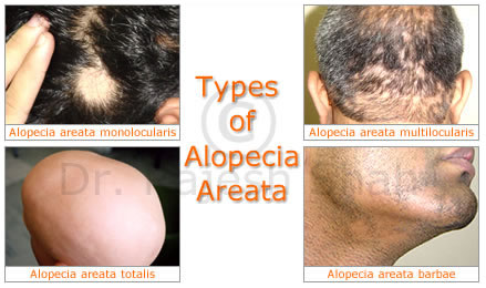 Types of alopecia areate.jpeg